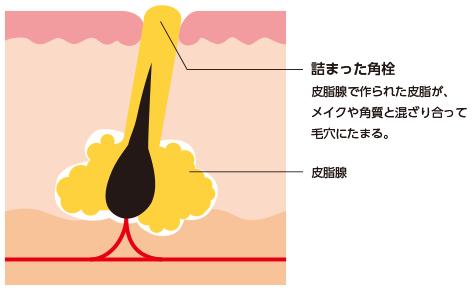 角栓ができる原因と酸化について