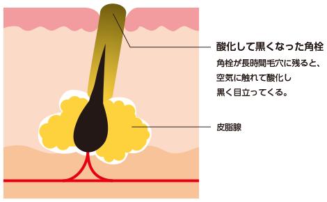 酸化した角栓