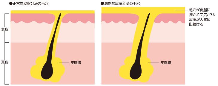 過剰な皮脂分泌