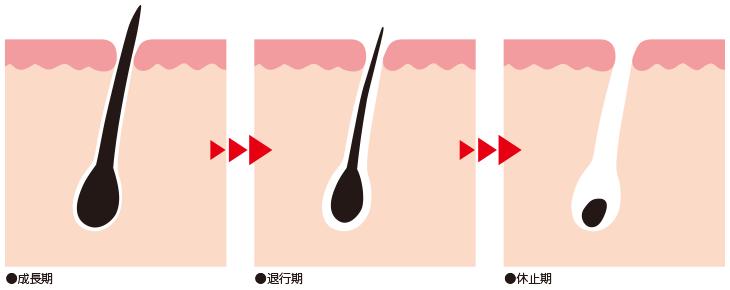 毛のターンオーバー