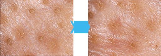 毛穴に対する臨床試験済み