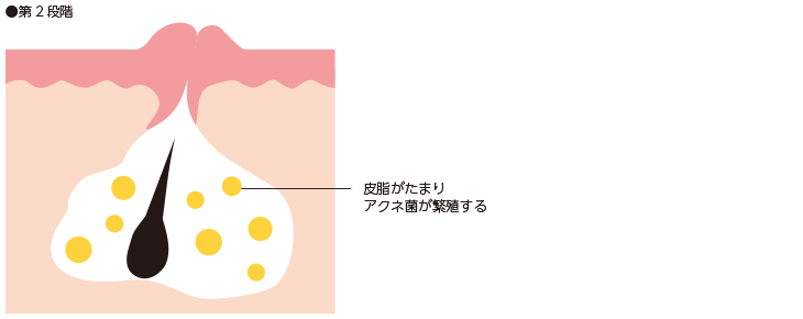 第2段階/皮脂が毛穴にたまる