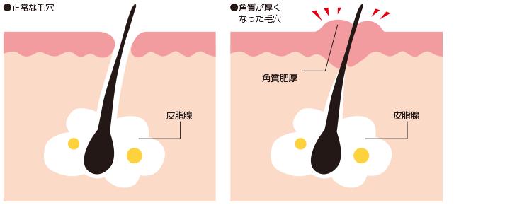第1段階/毛穴の角層部分が詰まって出口が狭くなる